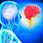 Neurology brain