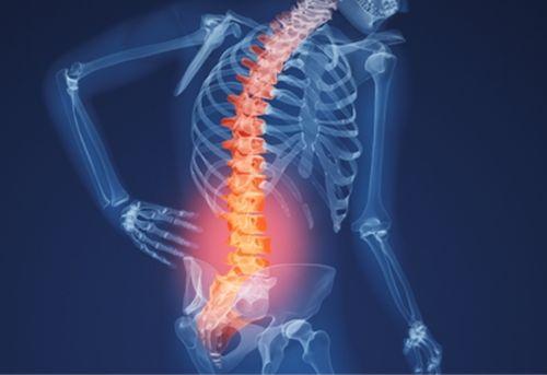 đau cột sống âm ỉ là dấu hiệu của bệnh gì?