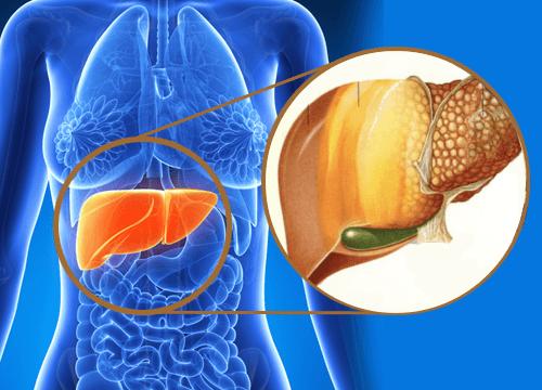 gan nhiễm mỡ là gì