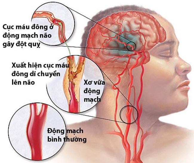 đột quỵ là bệnh gì?