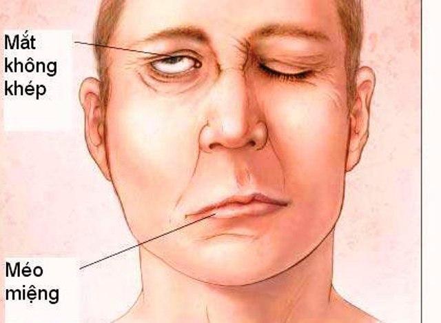 hệ lụy của bệnh đột quỵ